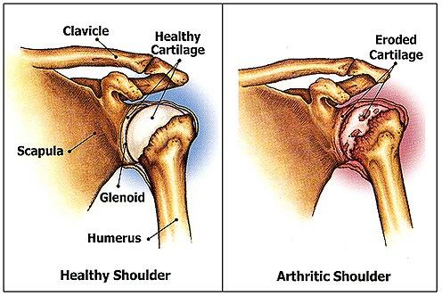schouder-artrose