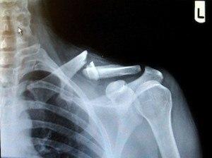 gebroken-sleutelbeen